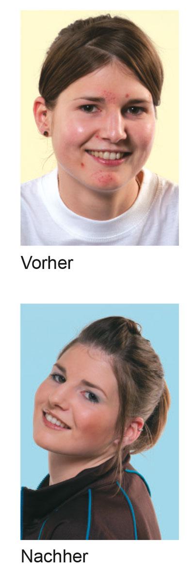 Beauty_Skin_vorher_nachher